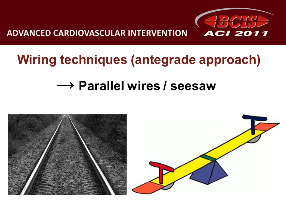 Wiring techniques (antegrade approach) → Parallel wires / seesaw