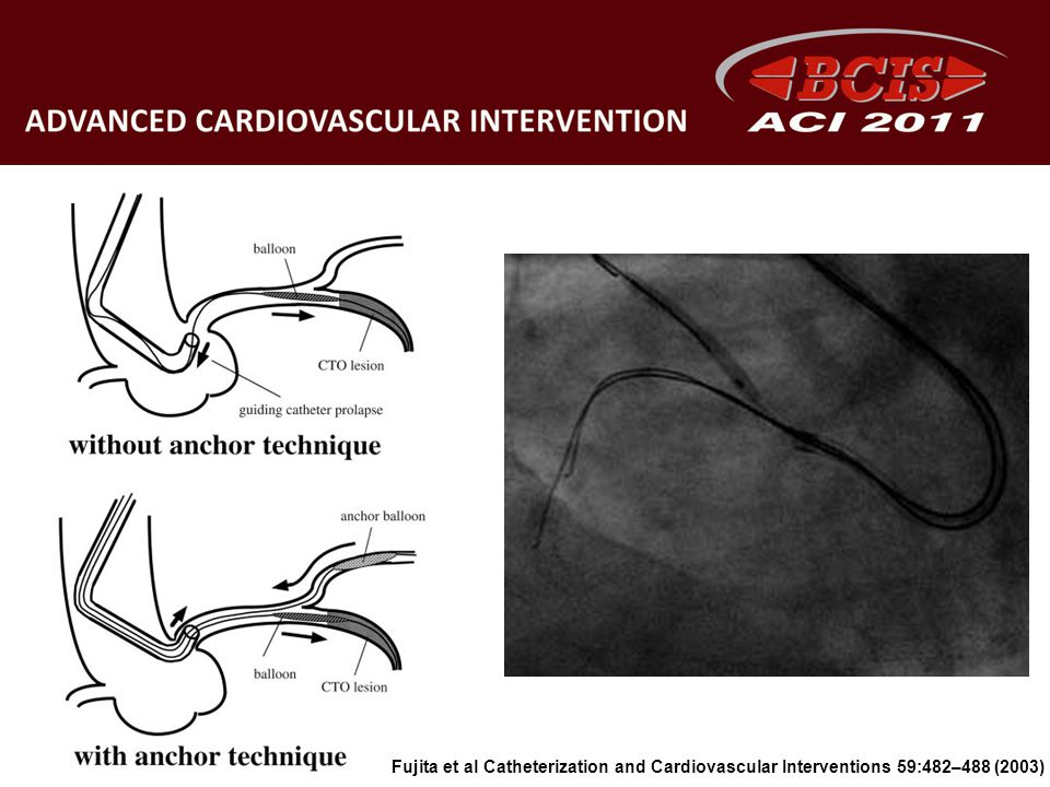 Fujita et al Catheterization and Cardiovascular Interventions 59:482–488 (2003)