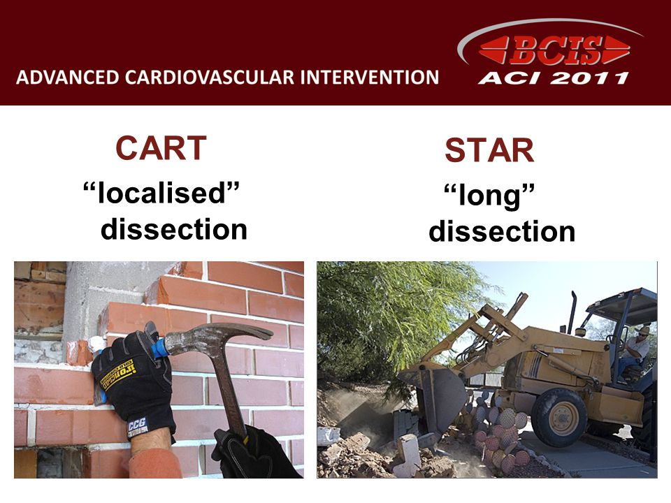 localised dissection
