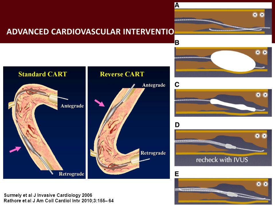 Surmely et al J Invasive Cardiology 2006