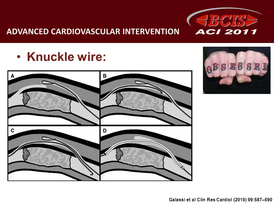 Knuckle wire: Galassi et al Clin Res Cardiol (2010) 99:587–590