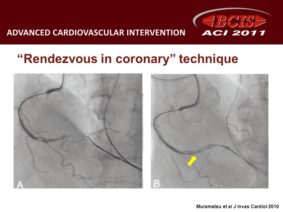 Rendezvous in coronary technique
