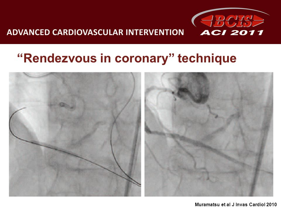 Rendezvous in coronary technique