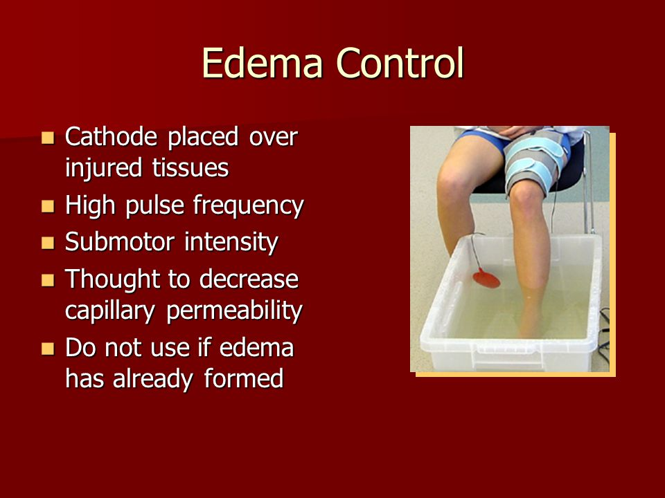 Edema Control Cathode placed over injured tissues High pulse frequency