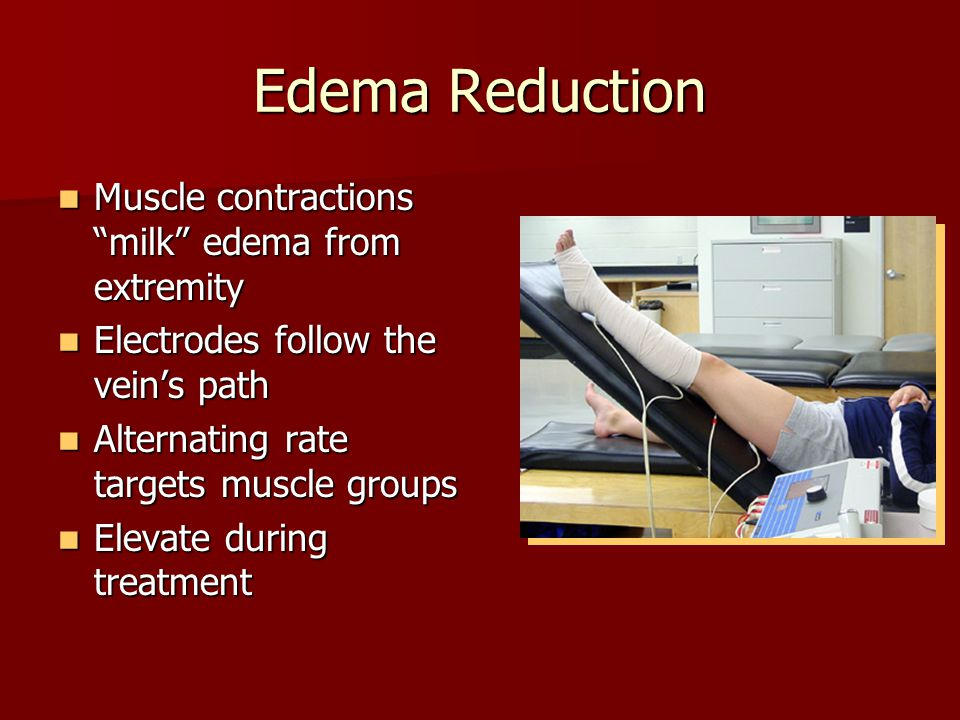 Edema Reduction Muscle contractions milk edema from extremity