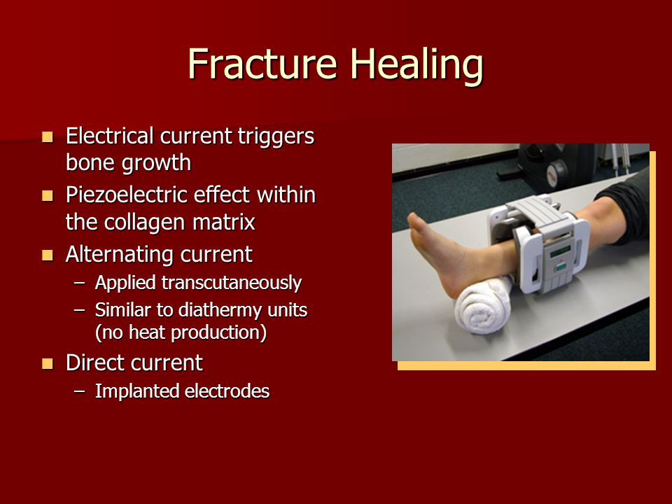 Fracture Healing Electrical current triggers bone growth