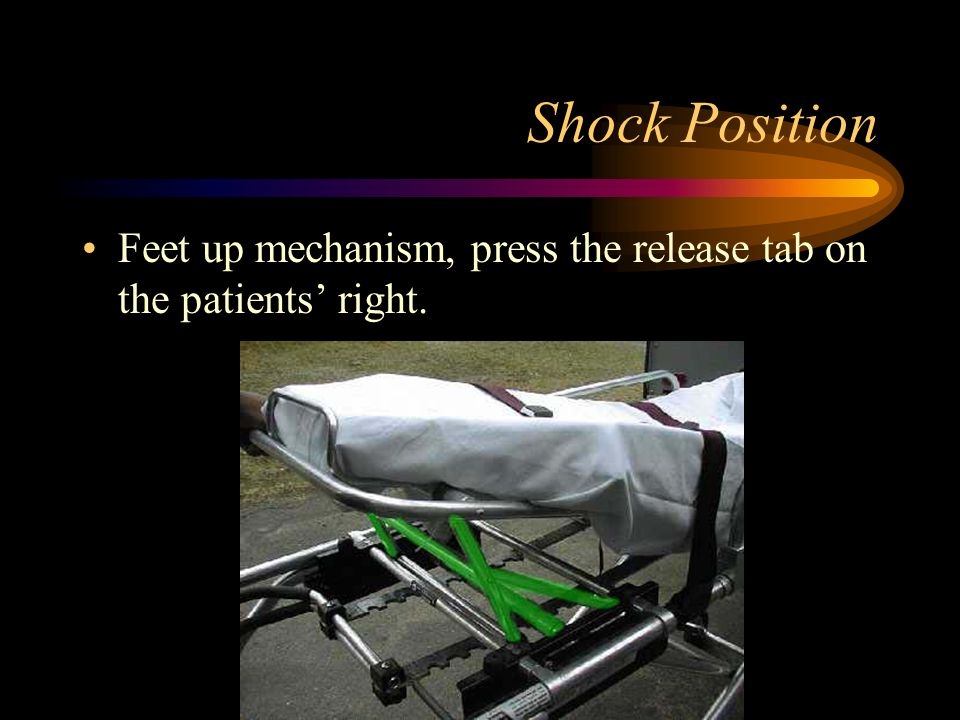 Shock Position Feet up mechanism, press the release tab on the patients' right.