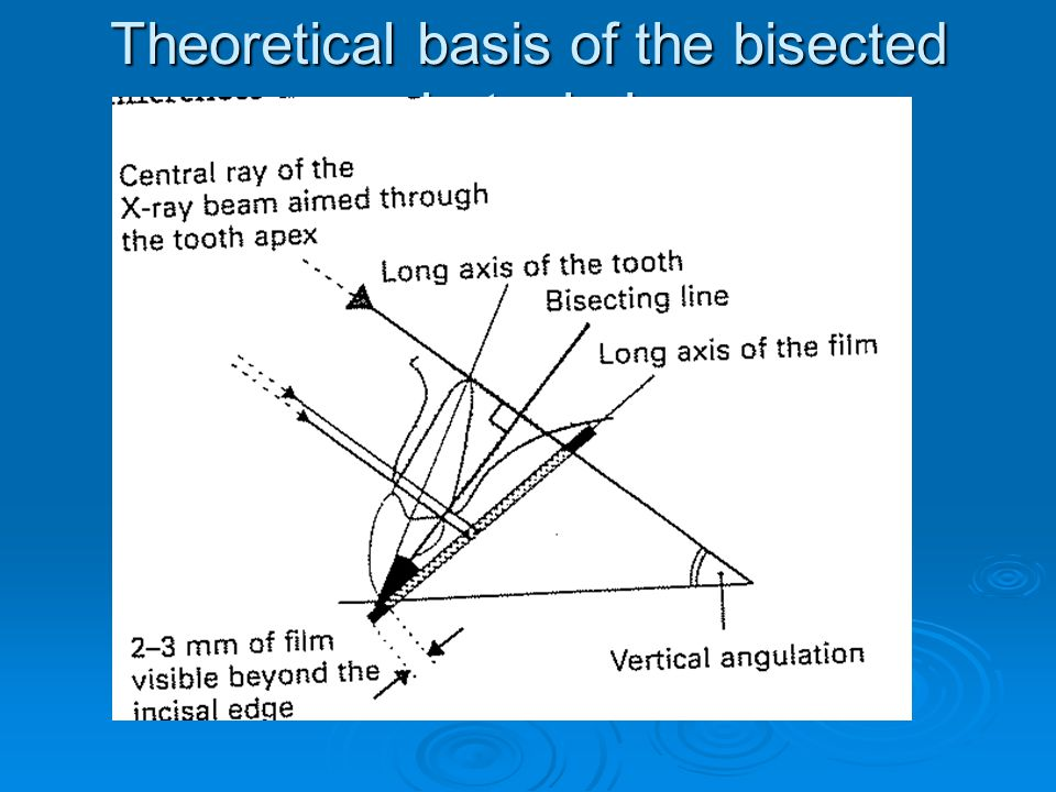 Theoretical basis of the bisected angle technique