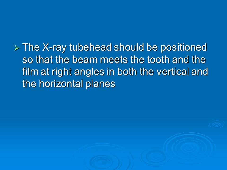 The X-ray tubehead should be positioned so that the beam meets the tooth and the film at right angles in both the vertical and the horizontal planes