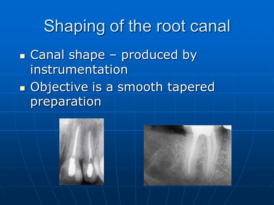 Shaping of the root canal