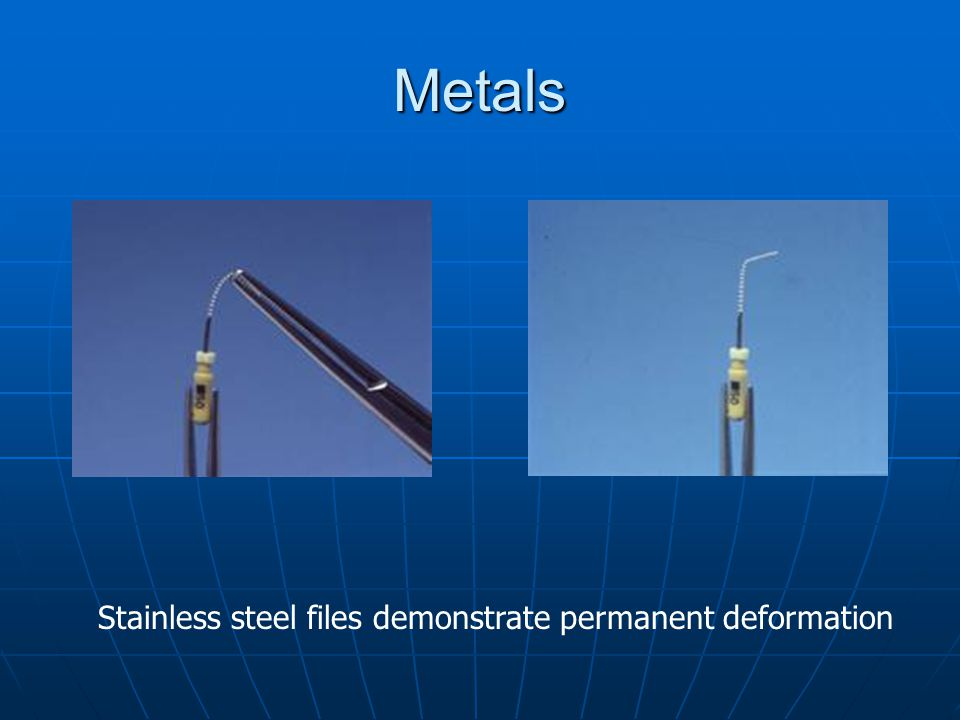 Metals Stainless steel files demonstrate permanent deformation