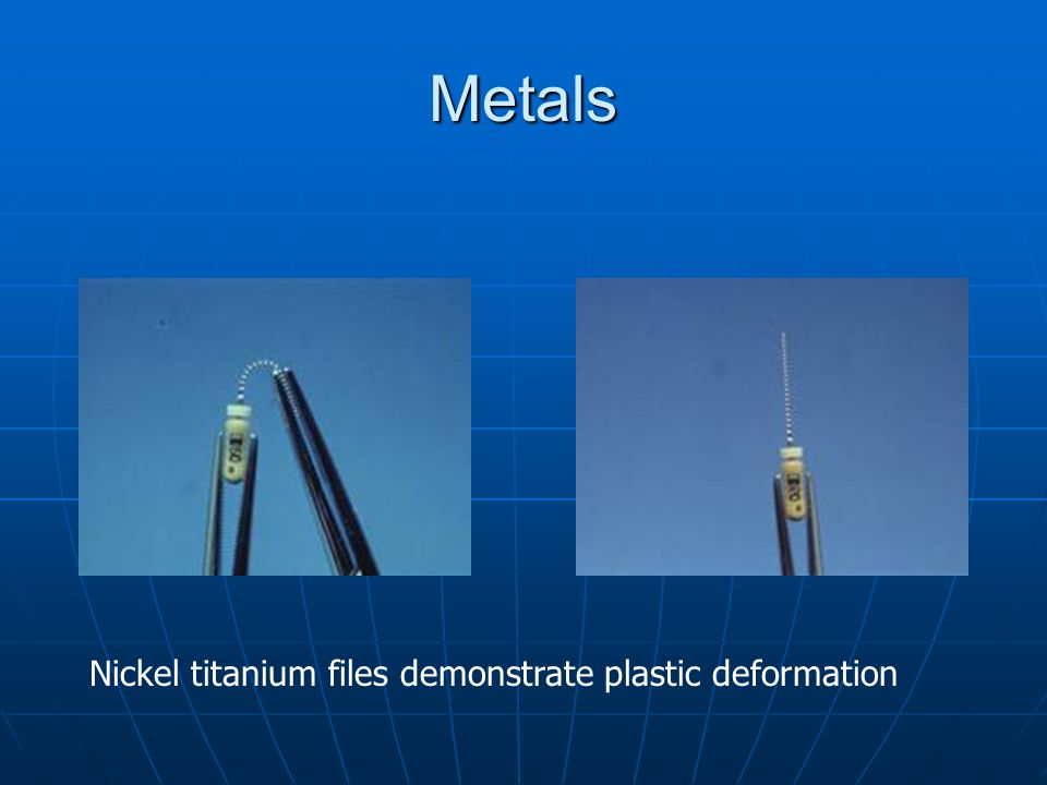 Metals Nickel titanium files demonstrate plastic deformation