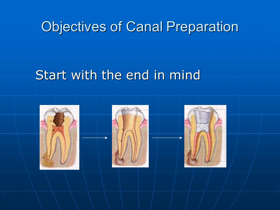 Objectives of Canal Preparation