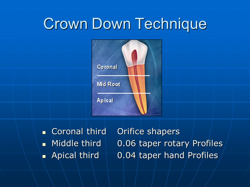 Crown Down Technique Coronal third Orifice shapers