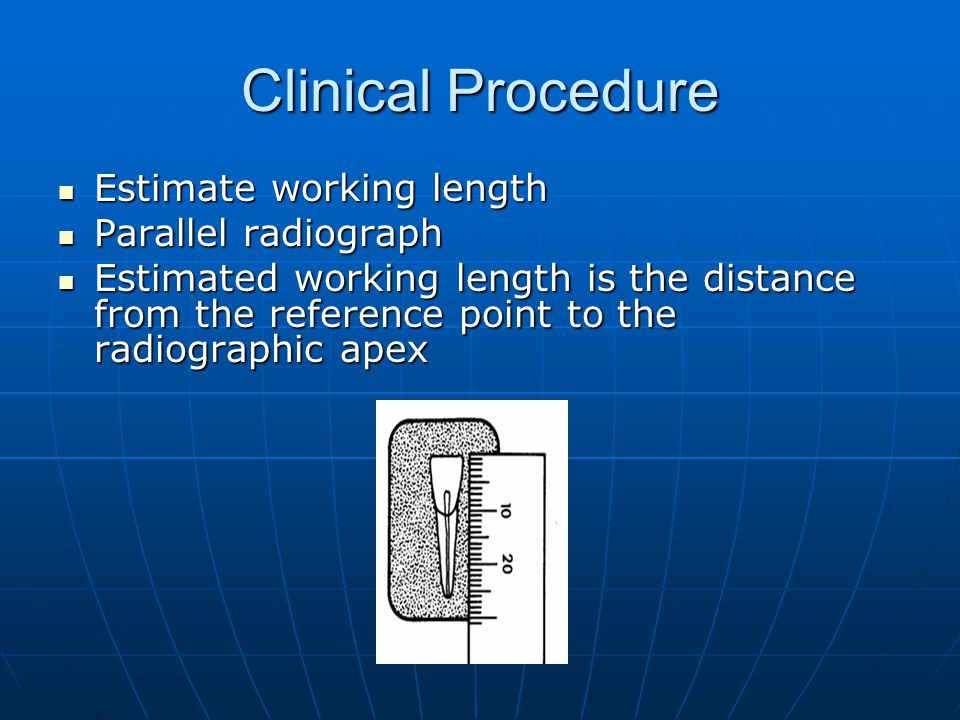 Clinical Procedure Estimate working length Parallel radiograph