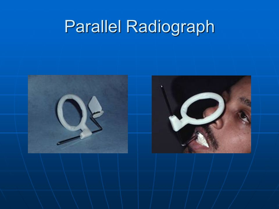 Parallel Radiograph