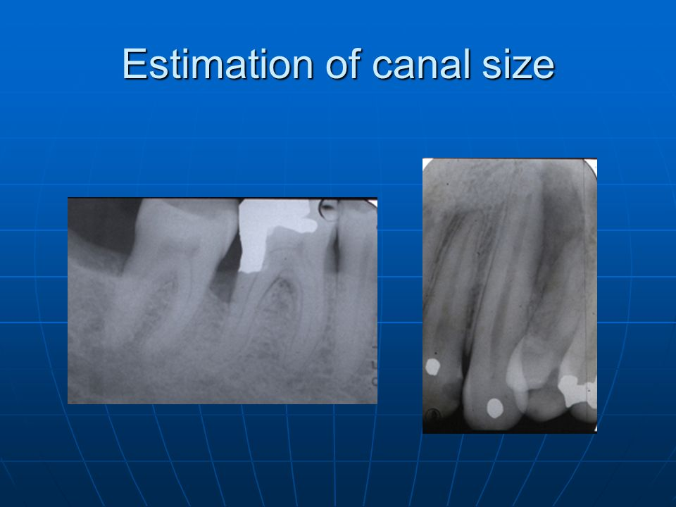 Estimation of canal size