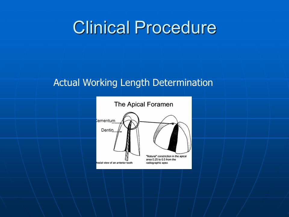 Clinical Procedure Actual Working Length Determination
