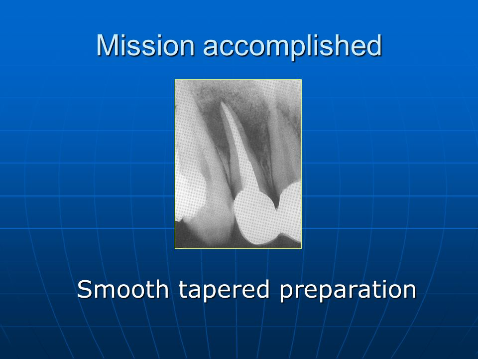 Mission accomplished Smooth tapered preparation