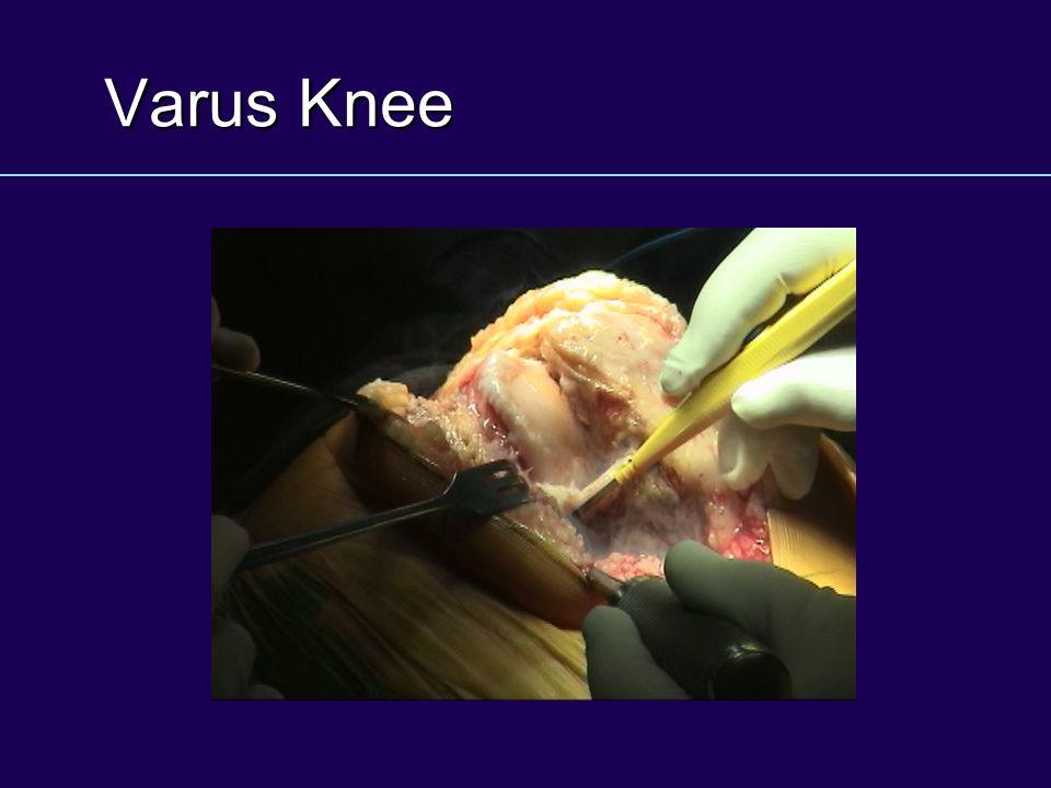 Varus Knee