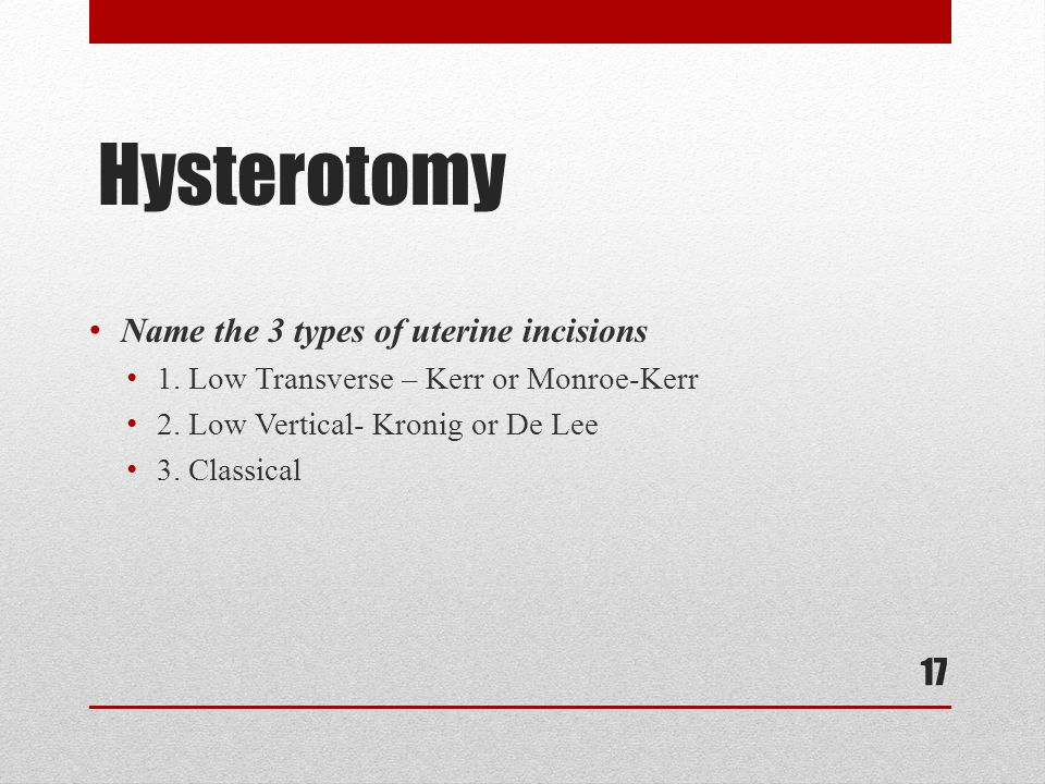 Hysterotomy Name the 3 types of uterine incisions