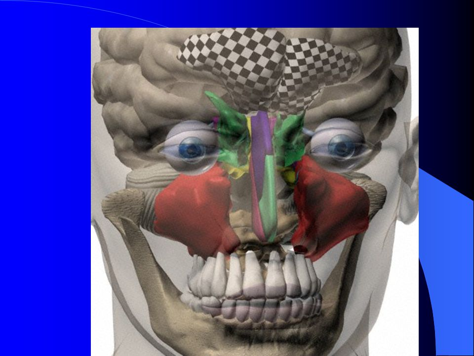 3D frontal view Jello tap over frontal, maxillary sinuses.