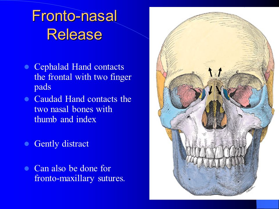 Fronto-nasal Release Cephalad Hand contacts the frontal with two finger pads. Caudad Hand contacts the two nasal bones with thumb and index.