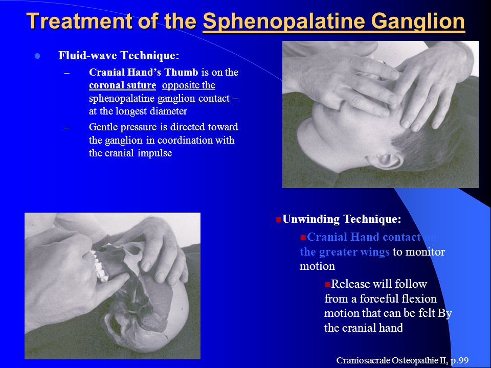 Treatment of the Sphenopalatine Ganglion