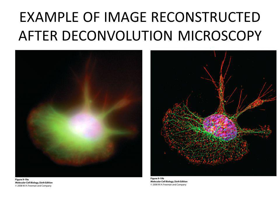 EXAMPLE OF IMAGE RECONSTRUCTED AFTER DECONVOLUTION MICROSCOPY