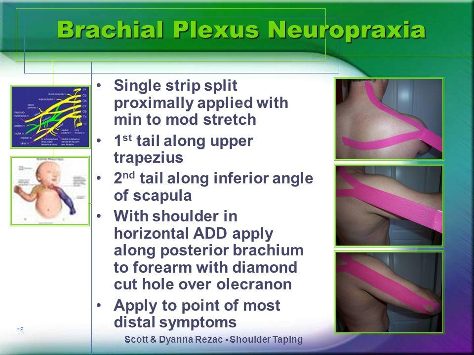 Brachial Plexus Neuropraxia