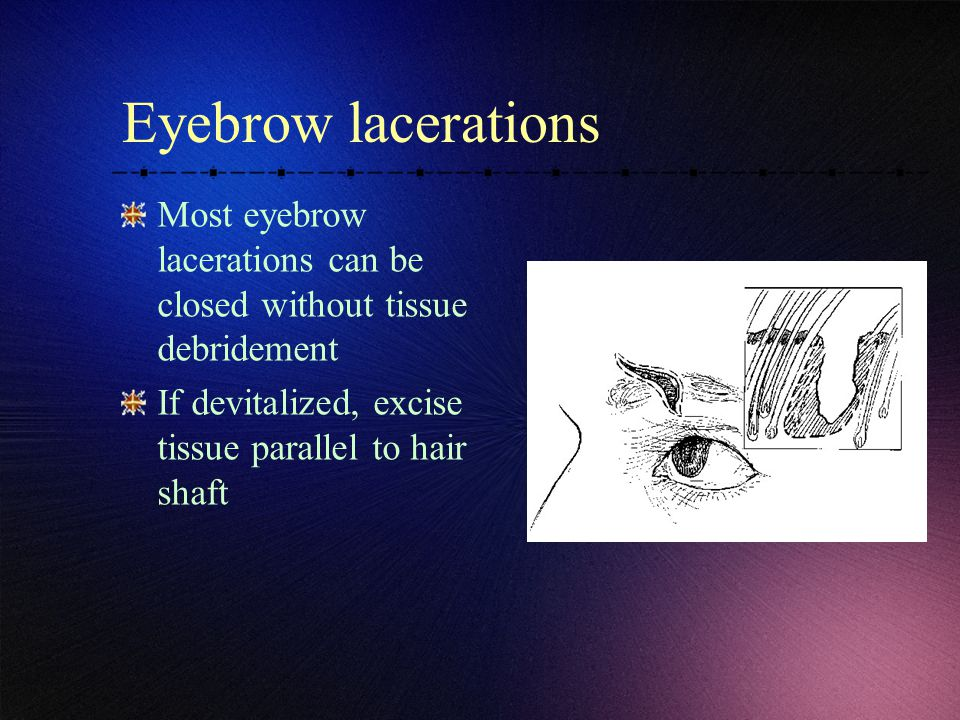 Eyebrow lacerations Most eyebrow lacerations can be closed without tissue debridement.