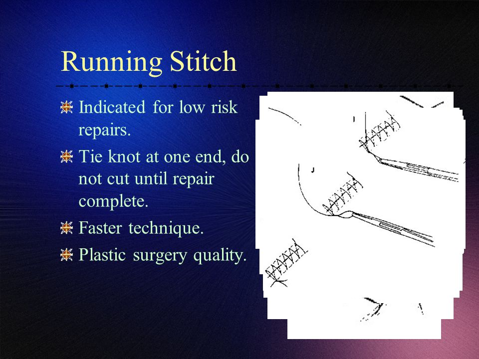Running Stitch Indicated for low risk repairs.