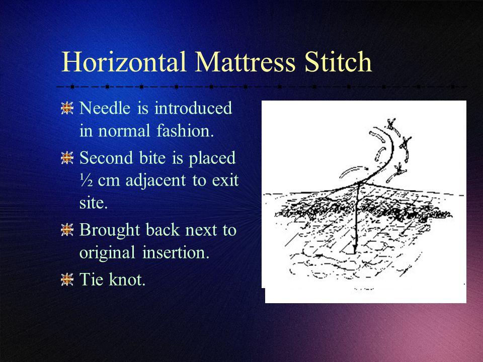 Horizontal Mattress Stitch