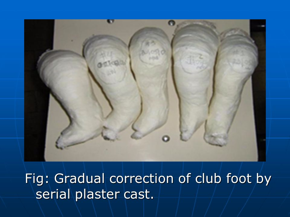 Fig: Gradual correction of club foot by serial plaster cast.