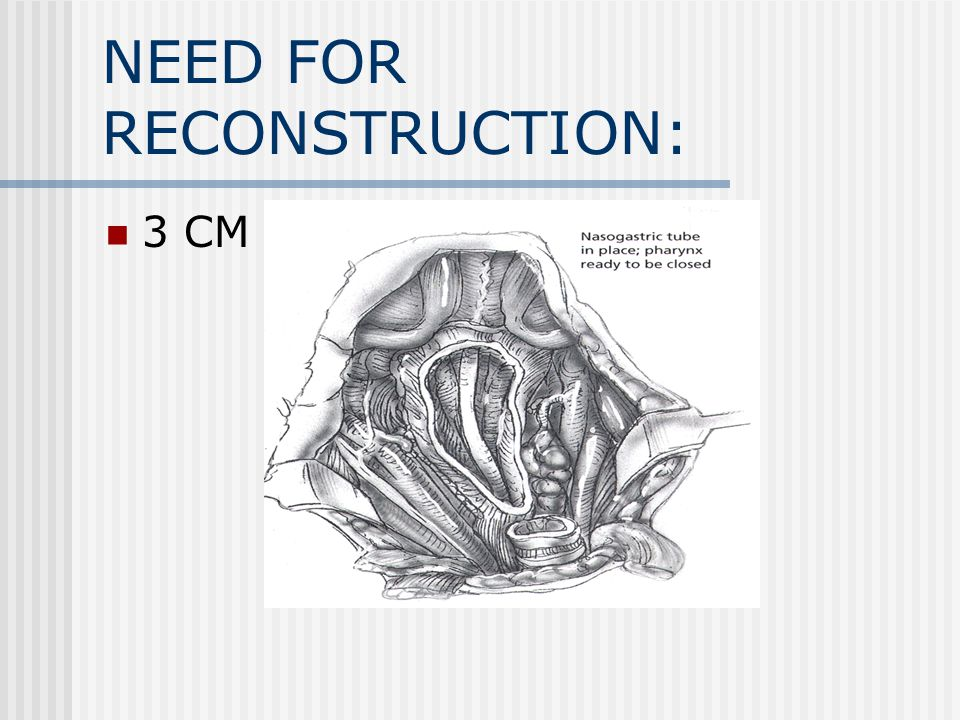 NEED FOR RECONSTRUCTION: