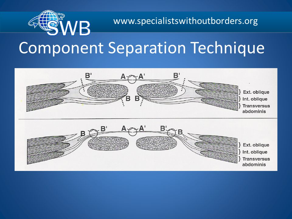 Component Separation Technique