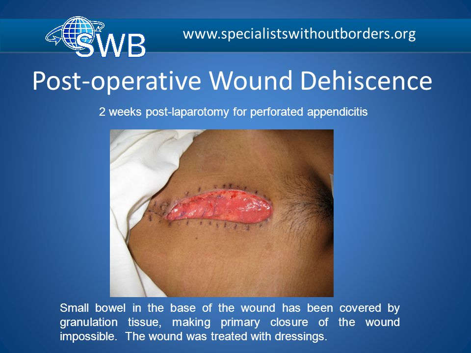 Post-operative Wound Dehiscence