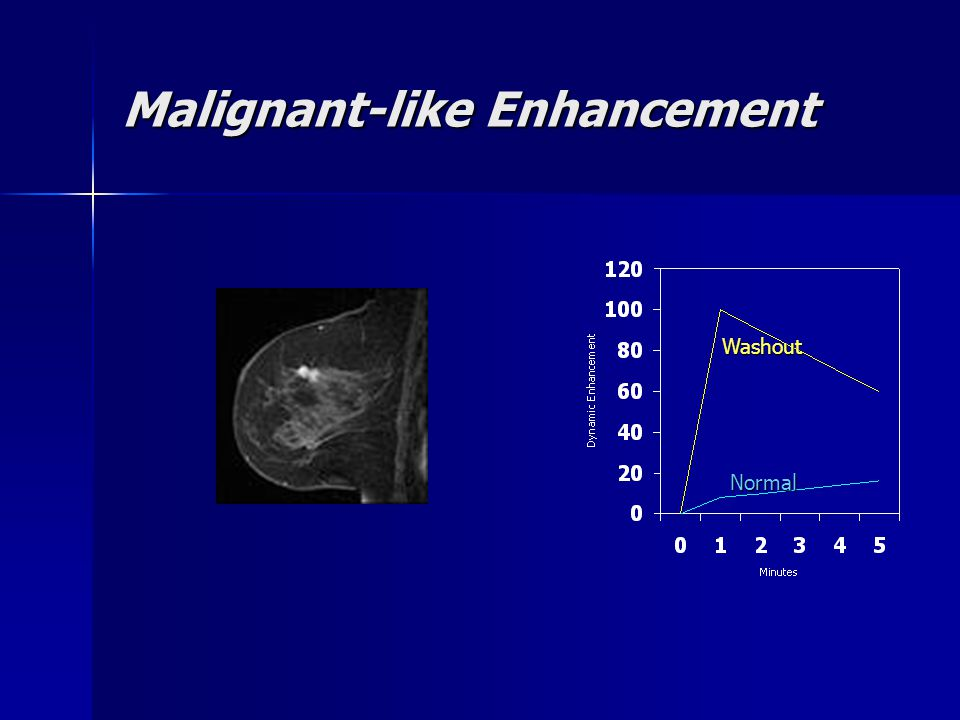 Malignant-like Enhancement