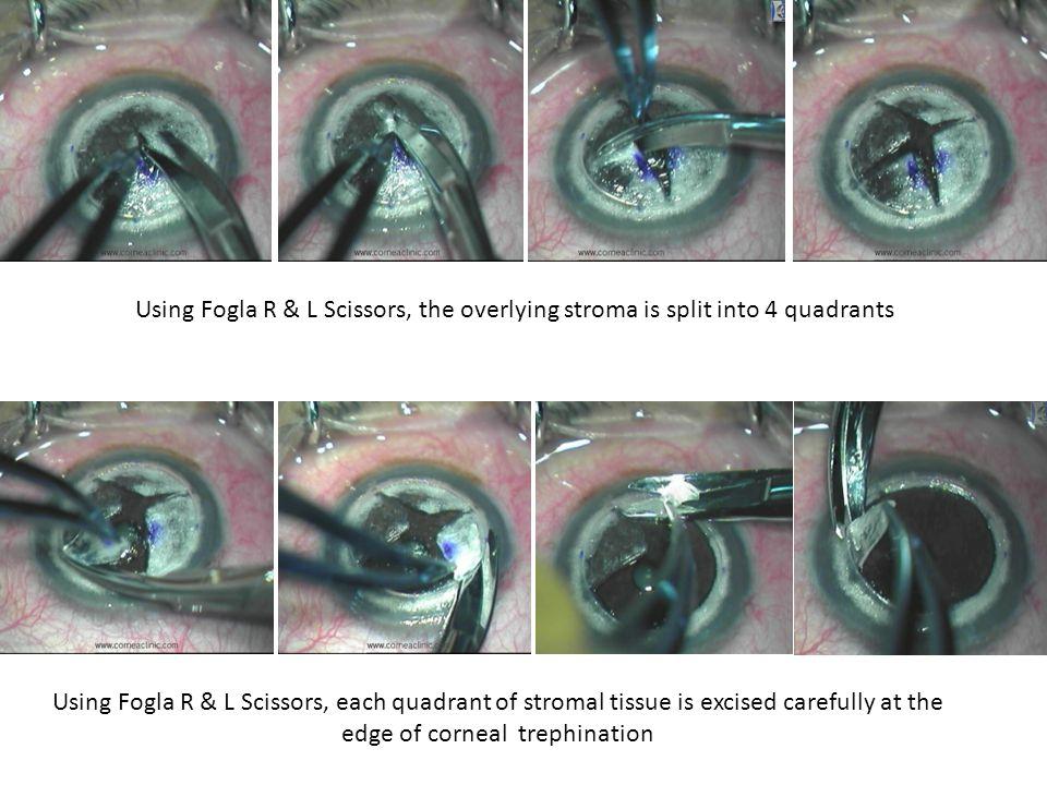Using Fogla R & L Scissors, the overlying stroma is split into 4 quadrants