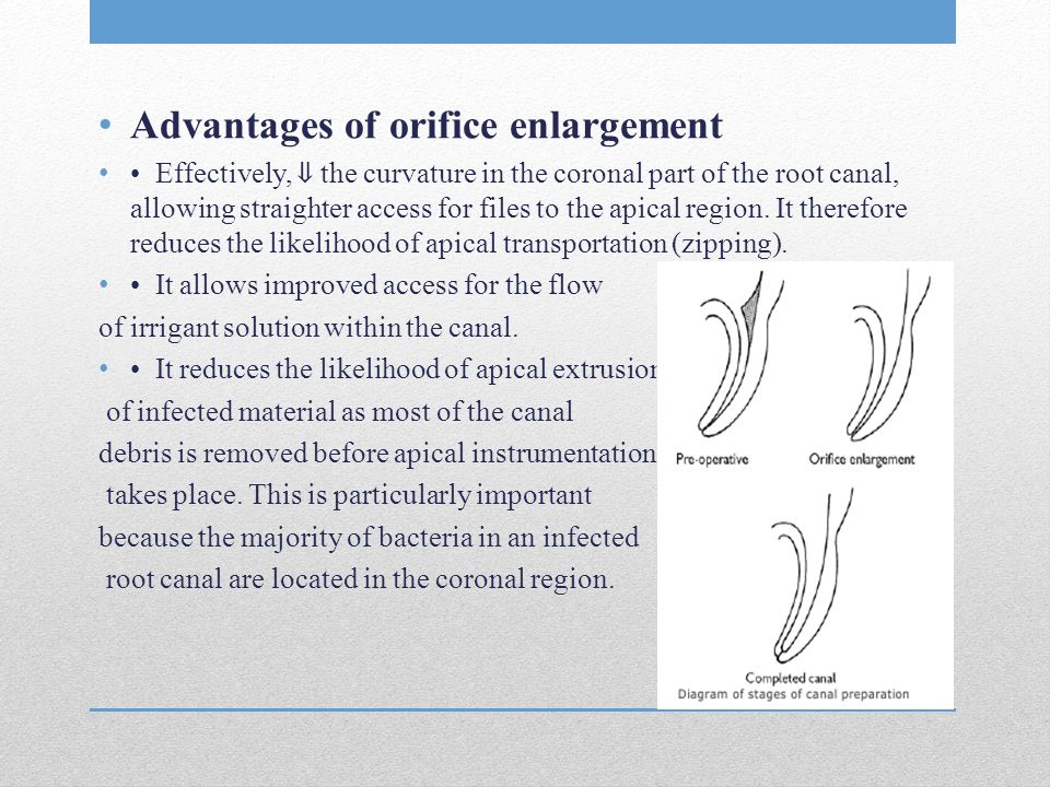 Advantages of orifice enlargement