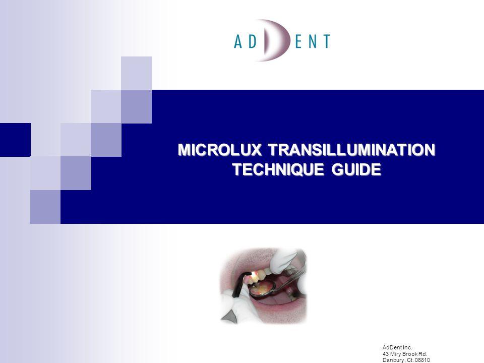 MICROLUX TRANSILLUMINATION TECHNIQUE GUIDE