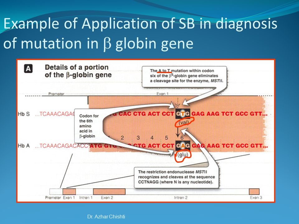 Example of Application of SB in diagnosis of mutation in  globin gene
