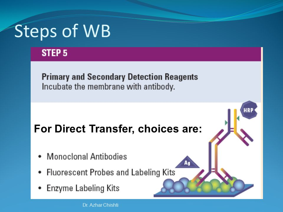 For Direct Transfer, choices are: