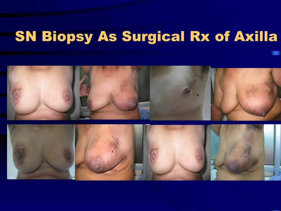 SN Biopsy As Surgical Rx of Axilla