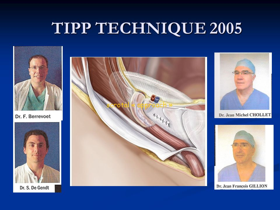 TIPP TECHNIQUE 2005 scrotal « approach »