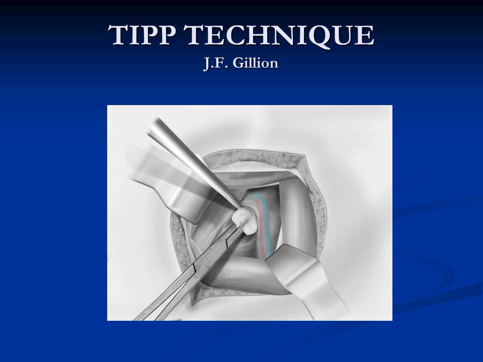 TIPP TECHNIQUE J.F. Gillion