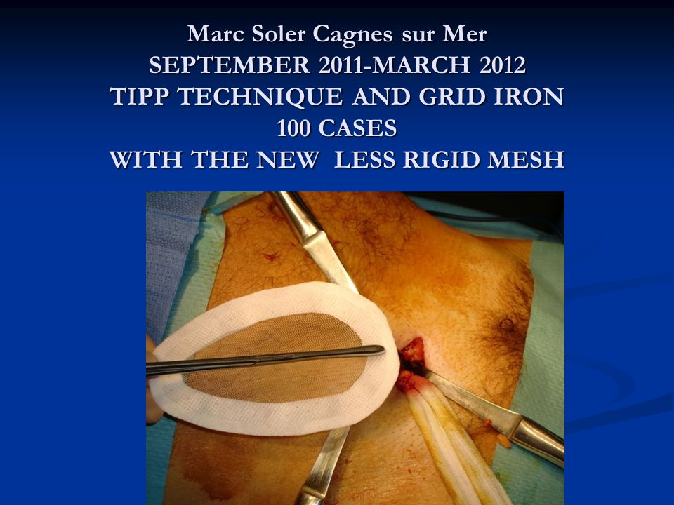 Marc Soler Cagnes sur Mer SEPTEMBER 2011-MARCH 2012 TIPP TECHNIQUE AND GRID IRON 100 CASES WITH THE NEW LESS RIGID MESH