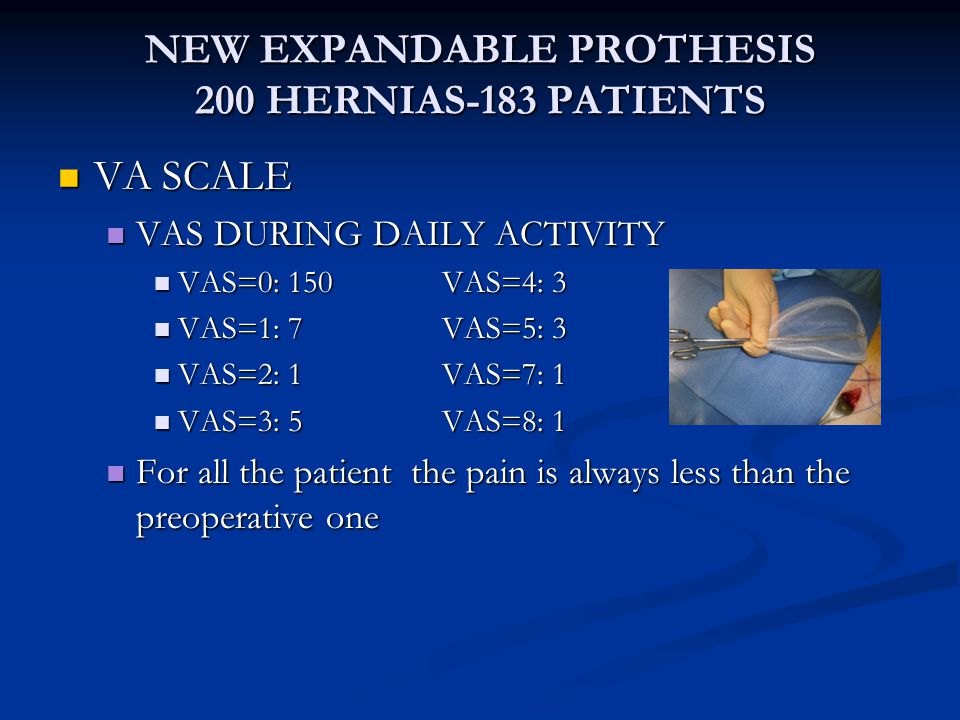 NEW EXPANDABLE PROTHESIS 200 HERNIAS-183 PATIENTS
