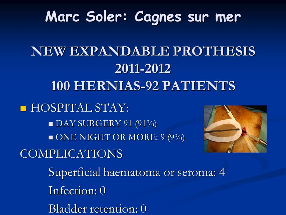 Marc Soler: Cagnes sur mer NEW EXPANDABLE PROTHESIS HERNIAS-92 PATIENTS