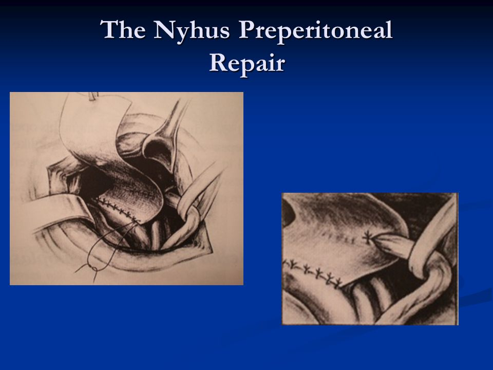 The Nyhus Preperitoneal Repair